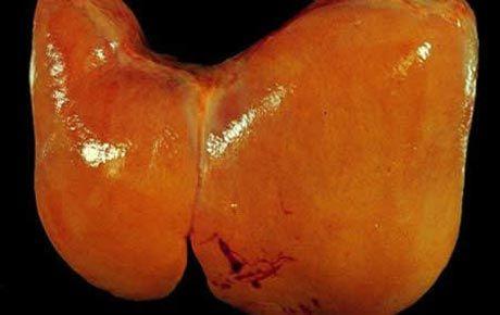 Дієта при жировий гепатоз печінки замінює собою ліки