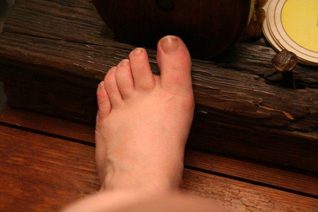 Грибок нігтів на ногах - лікування народними засобами