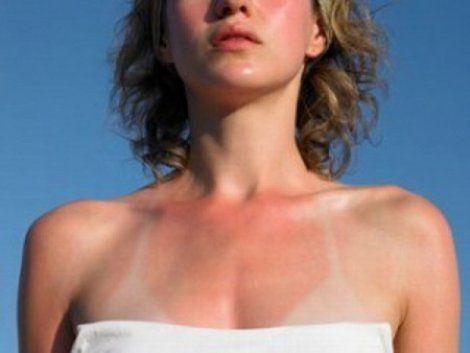 Народні засоби, що допомагають захистити шкіру від засмаги і усунути його неприємні наслідки